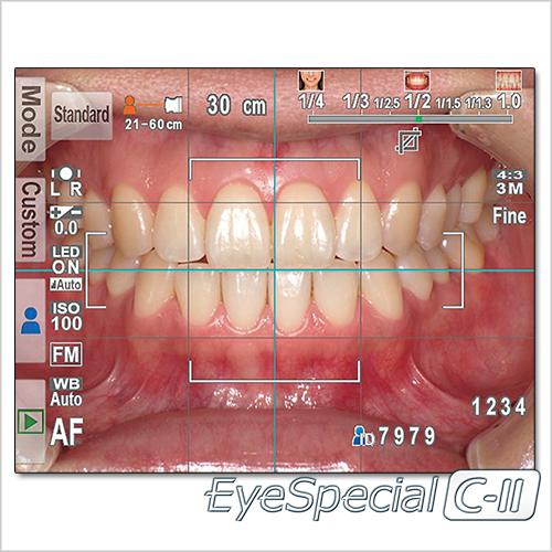 eyespecial_SHOFU_1-500×500